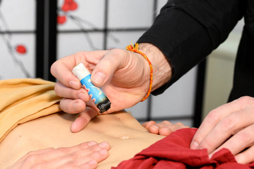 moxibustion - London Academy of Chinese Acupuncture (LACA)
